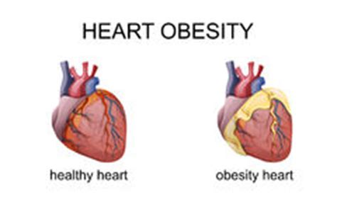 Obesity and hypertension research paper 2017